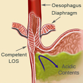 Diagram of a competent lower oesophageal sphincter