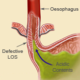 Diagram of a defective lower oesophageal sphincter with acid reflux in progress