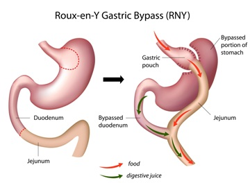 Gastric bypass 360x264